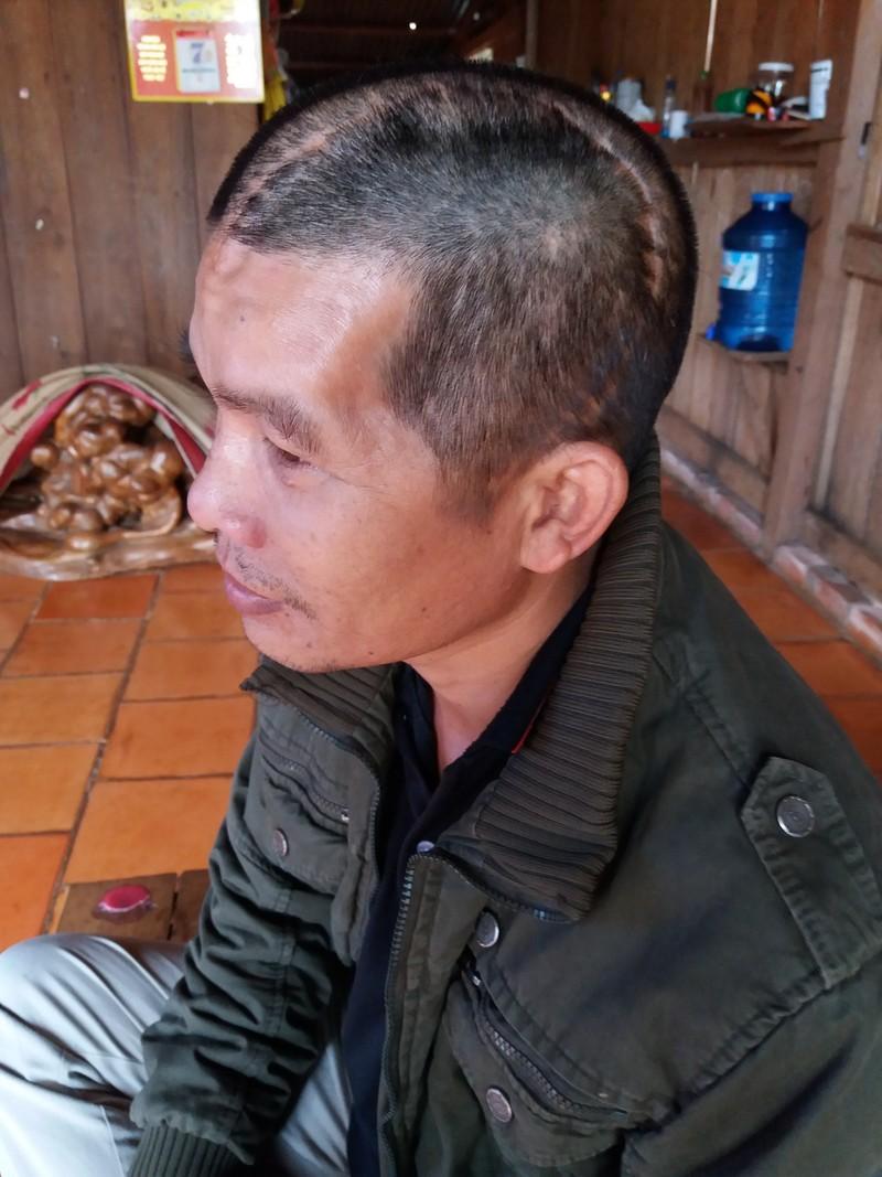 Ngày mai xử vụ nhóm bảo vệ Long Sơn truy sát người dân  - ảnh 1
