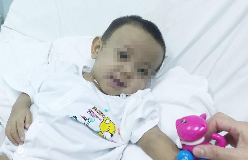 Ca ghép gan đặc biệt với bệnh nhi 18 tháng tuổi - ảnh 2