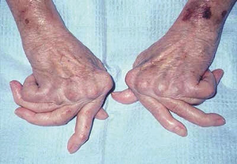 Viêm khớp dạng thấp gây ra nhiều tác dụng nguy hiểm. ẢNH:H.P