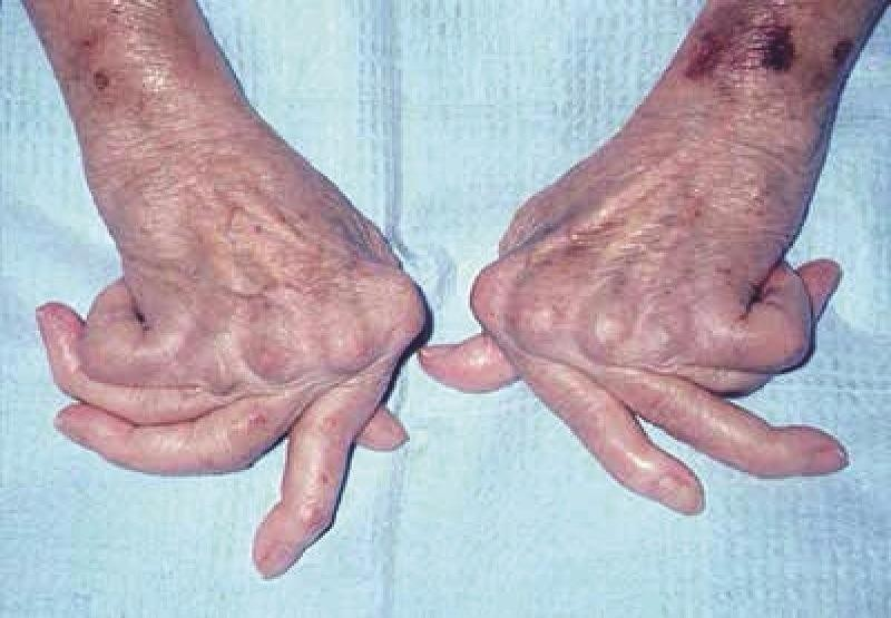 Viêm khớp dạng thấp  ảnh hưởng nghiêm trọng đến sức khỏe và chất lượng cuộc sống của người bệnh.