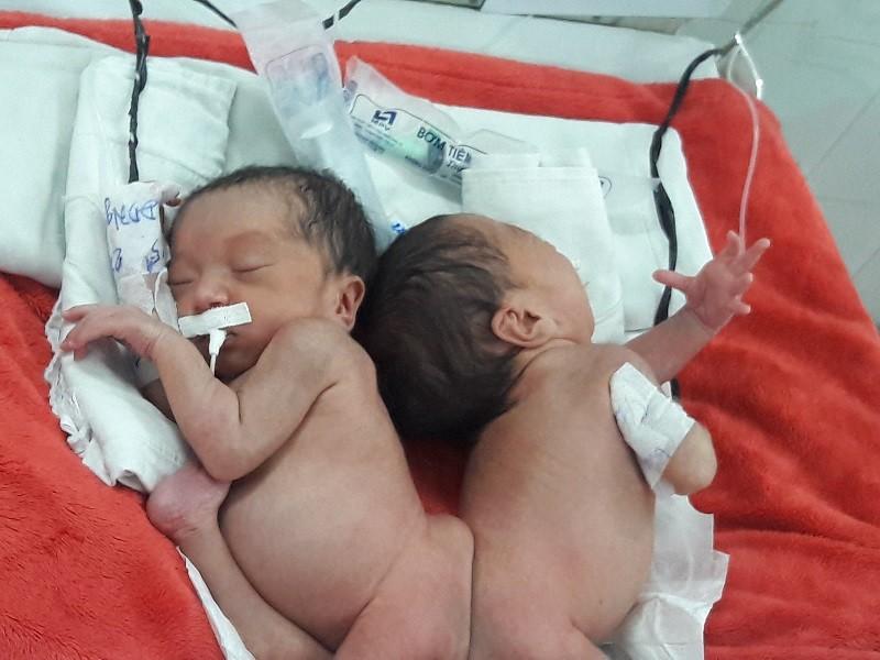 Hai bé song sinh dính liền mông, không thấy hậu môn - ảnh 3