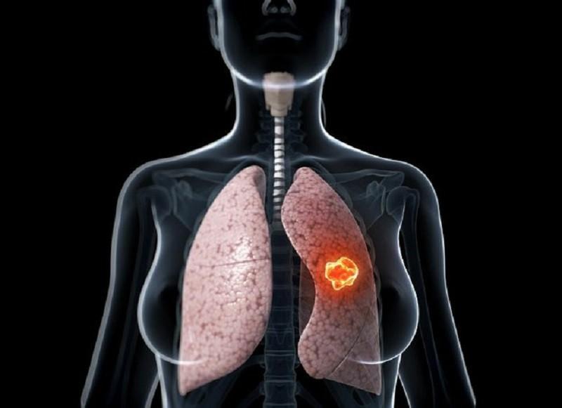 Ung thư phổi là nguyên nhân hàng đầu gây tử vong ở nam giới - ảnh 1