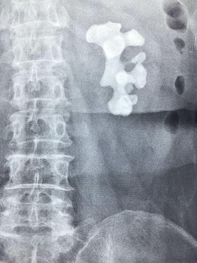 4 lần phẫu thuật lấy viên sỏi thận lớn kỷ lục - ảnh 2