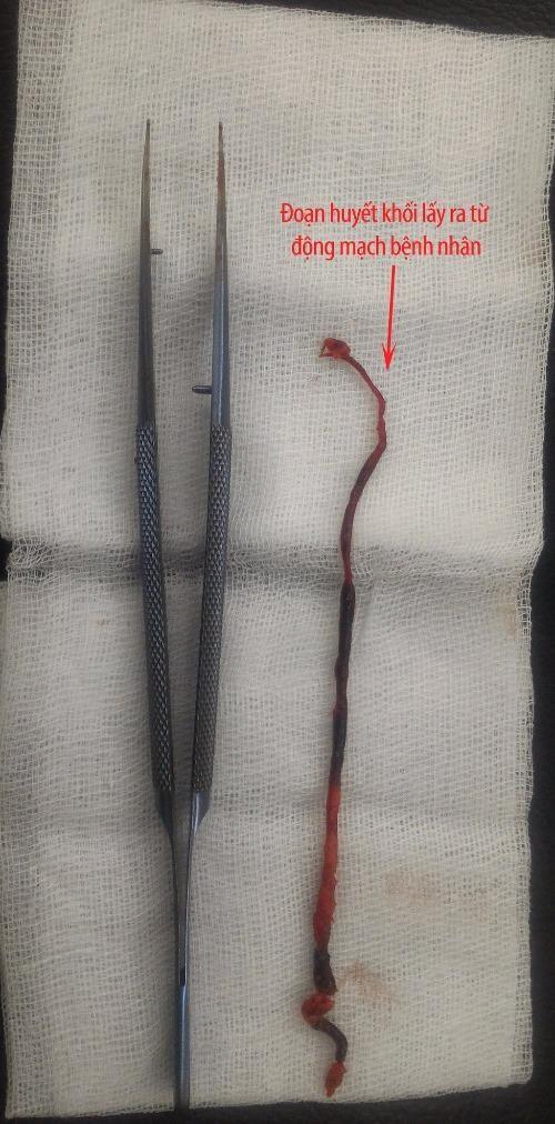 Tắc động mạch, suýt cắt bỏ tay mà cứ ngỡ đau xương - ảnh 1