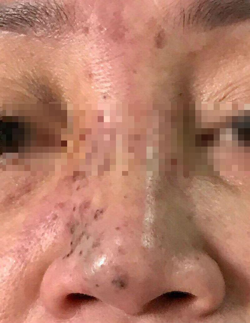 Hoại tử mặt do tiêm chất làm đầy ở Spa 'dỏm' - ảnh 1