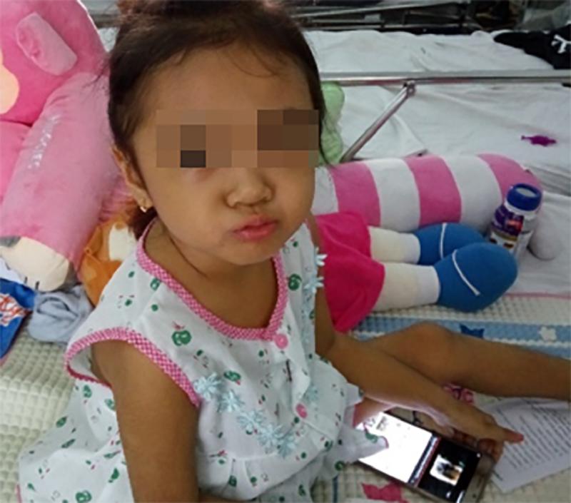 Kỳ lạ: Bác sĩ hy vọng khối u của bệnh nhi là u ác tính - ảnh 1