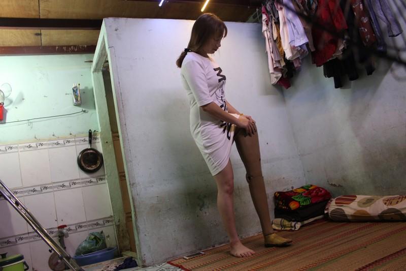 Sự thật về cô gái xinh đẹp mất một chân  - ảnh 11