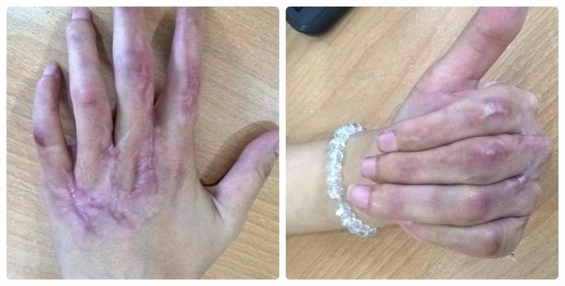 Hồi sinh kỳ diệu bàn tay dập nát cho cô gái trẻ - ảnh 2