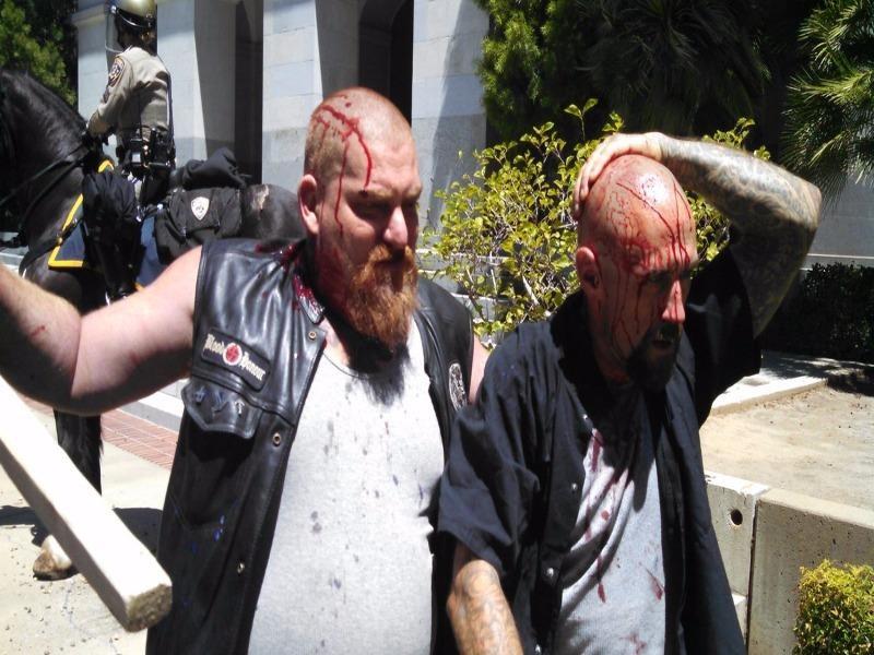 Bị thương trong xung đột biểu tình