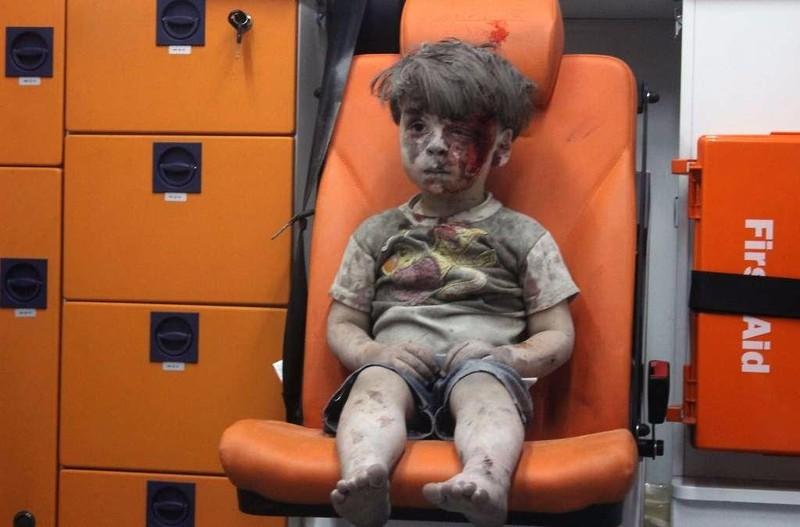 Cậu bé Syria 5 tuổi Omran Daqneesha người đầy máu và bụi, ngồi yên lặng trên trực thăng đi cấp cứu.