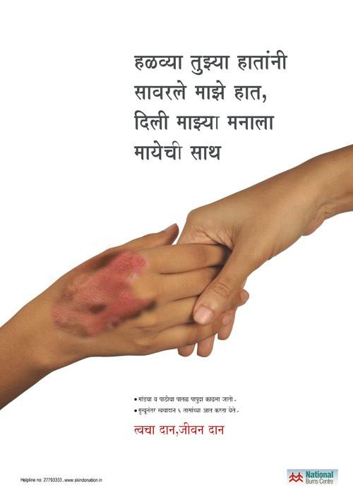 Hiến da là nghĩa cử rất cao thượng trong y khoa, đặc biệt đối với các bệnh nhân bị bỏng.