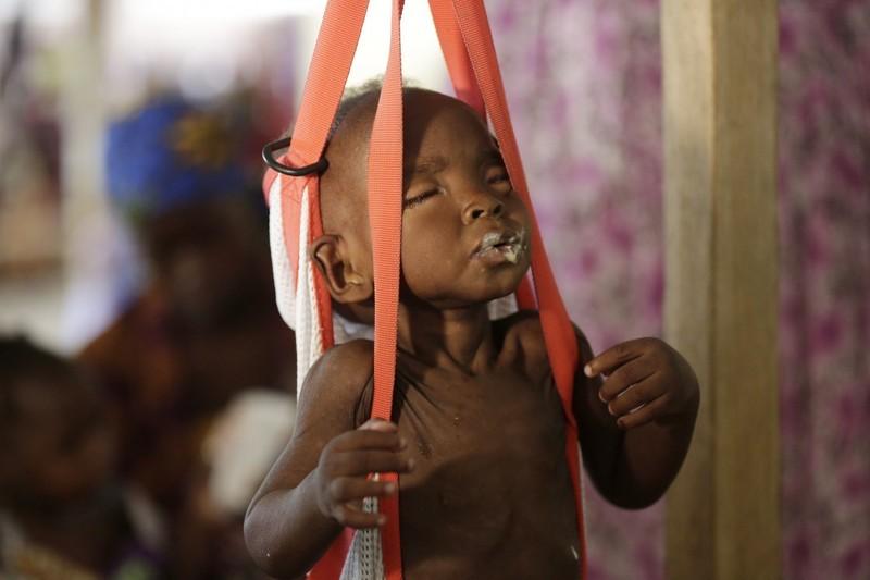 Trẻ suy dinh dưỡng được cân khám, cứu chữa ở phòng khám của tổ chức Bác sĩ không biên giới ở Maiduguri (Nigeria) ngày 29-8.
