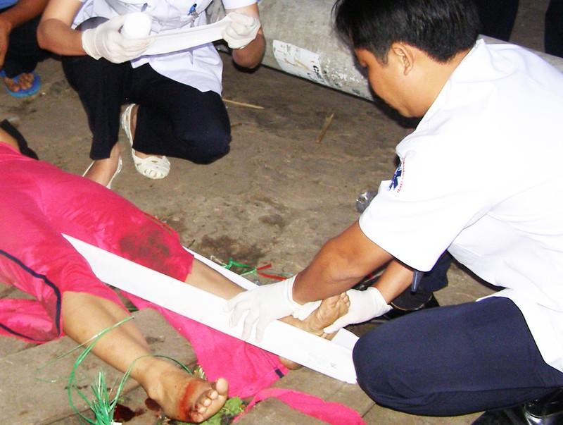 Sơ cứu tai nạn thường gặp khi đi du lịch ngày tết - ảnh 1