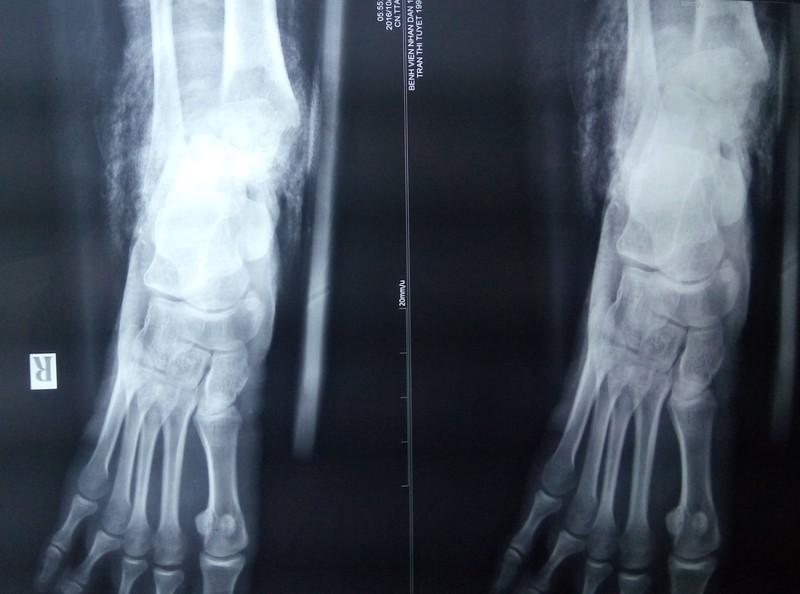 3 lần phẫu thuật cứu bàn chân dập nát do xe nâng cán - ảnh 1