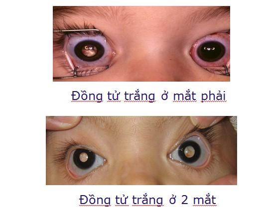 Vết trắng trong mắt trẻ và ung thư võng mạc