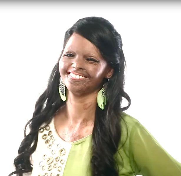 Cô gái bị tạt acid làm người mẫu thời trang - ảnh 3