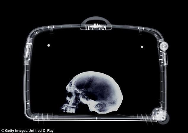 Giáo sư người Đức bị bắt vì mang sọ người đến sân bay - ảnh 1