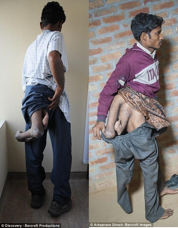 chàng trai ấn độ có 4 chân