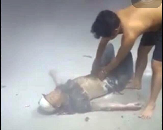 Hút thuốc lúc mua xăng, 1 thanh niên bị thiêu thành 'đuốc sống' - ảnh 2