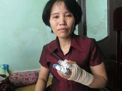 Một phụ nữ bị hàng xóm chém lìa hai ngón tay - ảnh 1