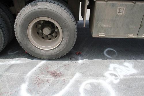 Bé trai bảy tuổi bị xe container cán nát chân - ảnh 2