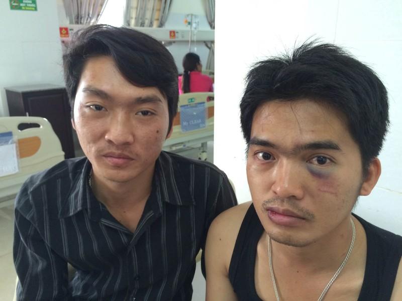 Vờ mua SIM điện thoại để đánh bầm dập nạn nhân - ảnh 2