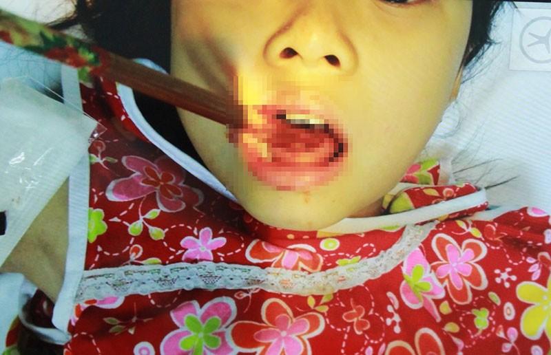 Hi hữu bé gái bị đôi đũa đâm thủng lưỡi - ảnh 1