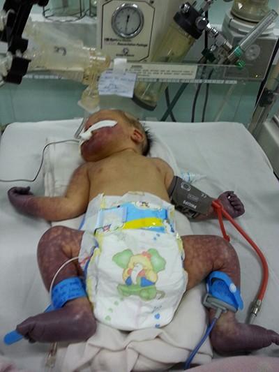Cứu sống bệnh nhi sơ sinh bị tắc mạch tứ chi - ảnh 1