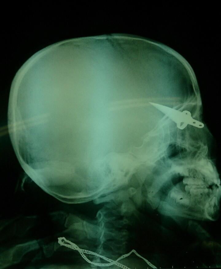 Hội chẩn từ xa cứu cháu bé bị dao găm vào não - ảnh 1