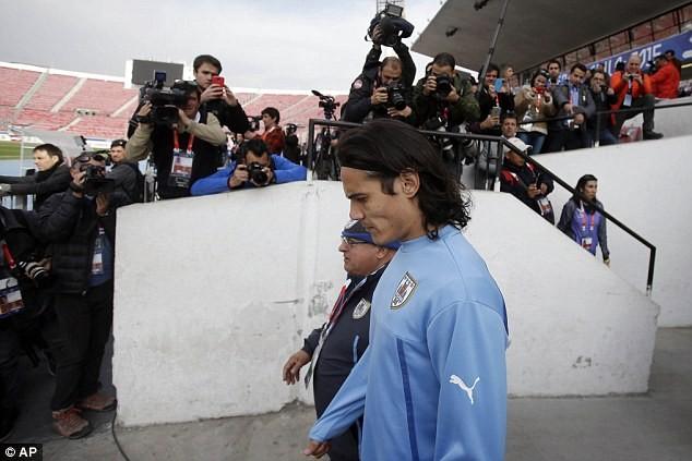 Nhận hung tin, Cavani có thể lỡ Copa America - ảnh 1