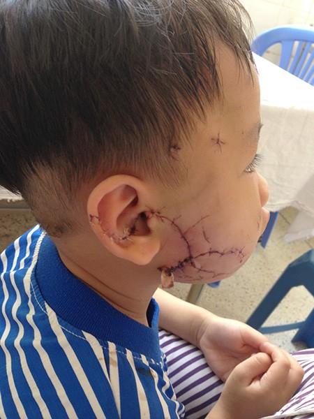 Nhiều trẻ nhập viện vì chó cắn - ảnh 2