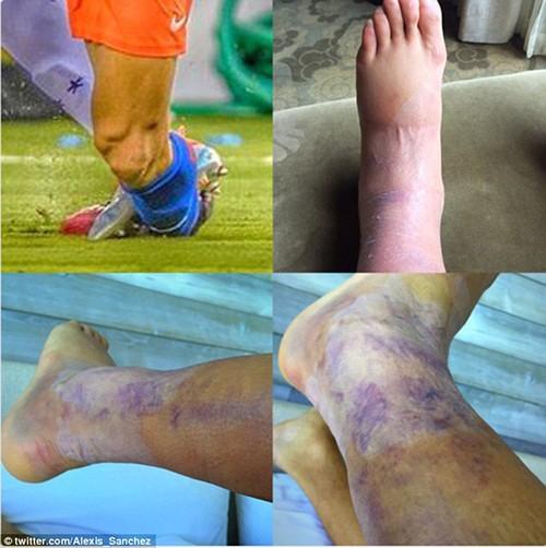 Sốc: Sanchez đăng ảnh tiết lộ chấn thương kinh hoàng - ảnh 1