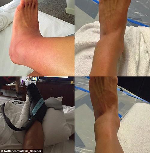 Sốc: Sanchez đăng ảnh tiết lộ chấn thương kinh hoàng - ảnh 2