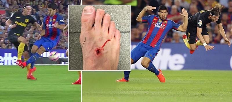 Suarez chơi xấu khiến chân đối thủ… lủng lỗ - ảnh 1