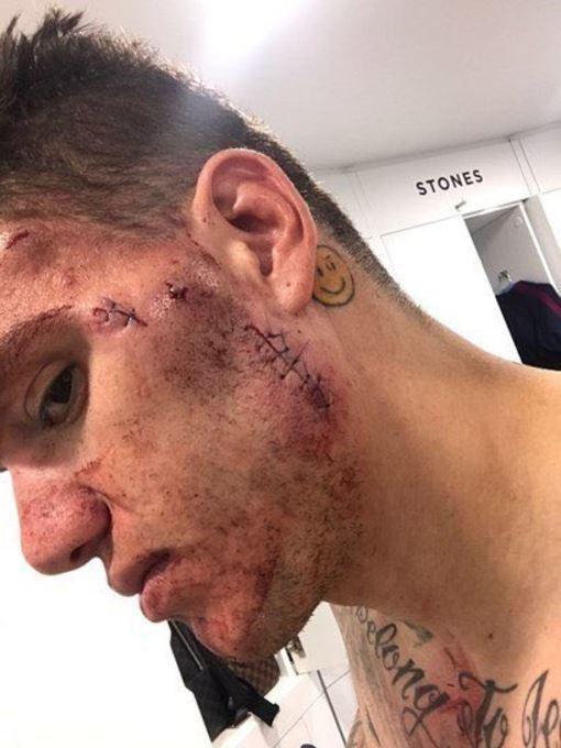 Sao Man City 'khoe' ảnh… nát mặt sau va chạm kinh hoàng - ảnh 2