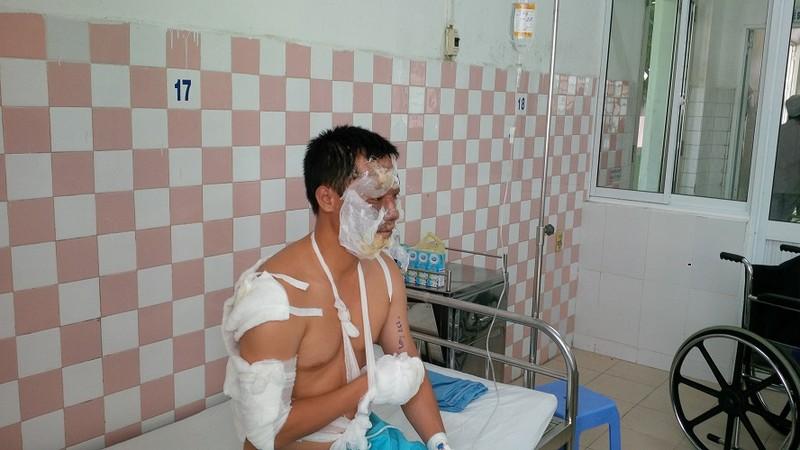 Cháy nổ lớn trong kho hóa chất, 17 chiến sĩ PCCC bị thương - ảnh 2