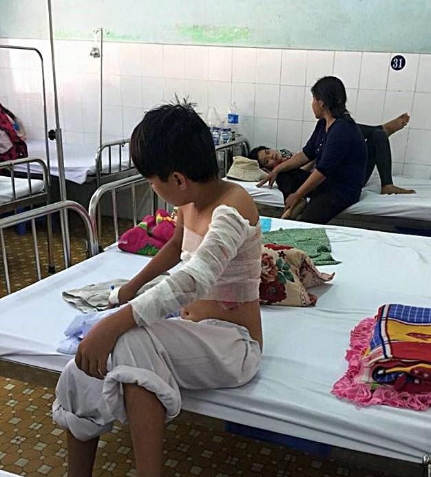 Cha phóng hỏa, 2 mẹ con nhập viện vì bỏng - ảnh 1