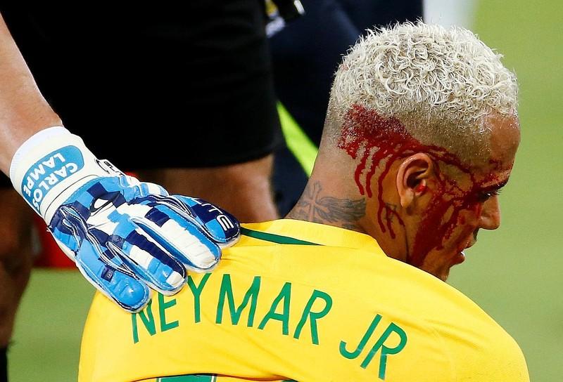 Neymar đổ máu ở Nam Mỹ, trời Âu đau lòng - ảnh 1