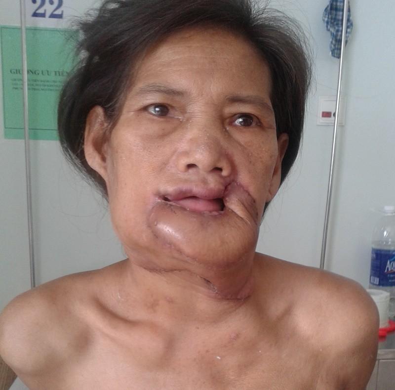 Phẫu thuật loại bỏ khối u 'khổng lồ' ở môi dưới - ảnh 2
