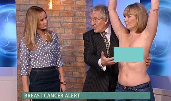 Lột trần kiểm tra ung thư vú khi truyền hình trực tiếp - ảnh 2