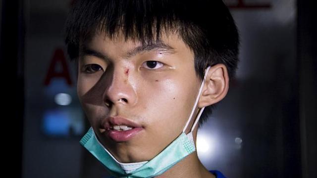Thủ lĩnh sinh viên của Hong Kong bị tấn công giữa phố - ảnh 1