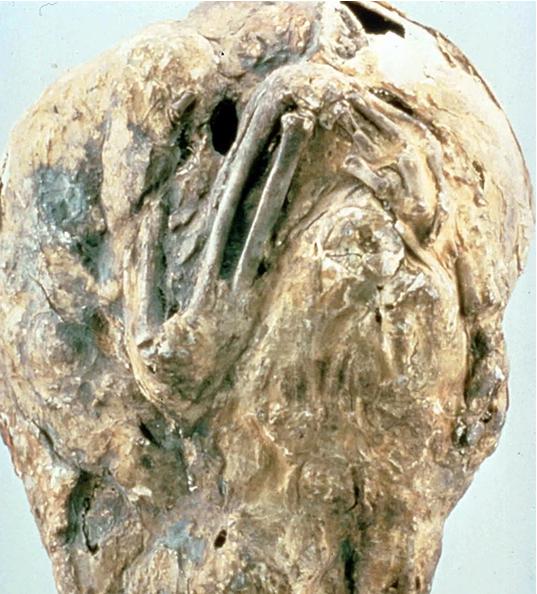 Người phụ nữ mang 'thai đá' hơn nửa thế kỷ - ảnh 1