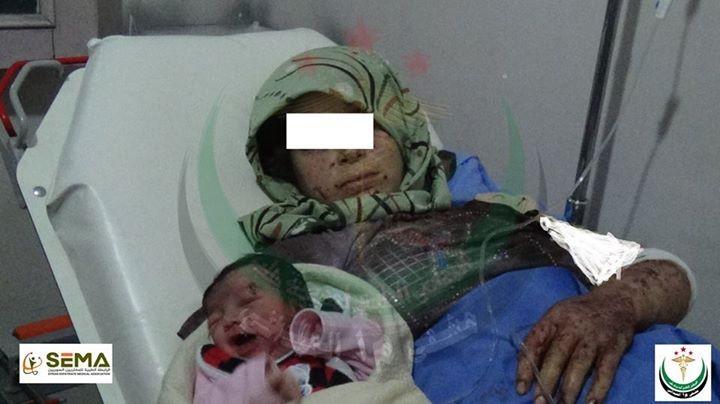 Kỳ diệu bé gái chào đời với mảnh đạn ghim vào đầu - ảnh 2
