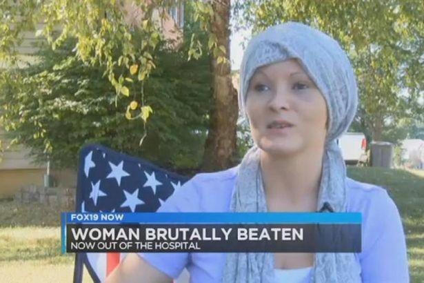 Cô gái bị chó cắn đứt tai… vì bài viết trên Facebook - ảnh 3