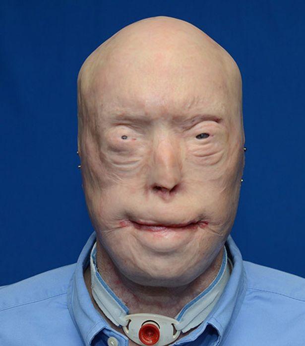Người đàn ông 70 lần phẫu thuật tái tạo bộ mặt - ảnh 1