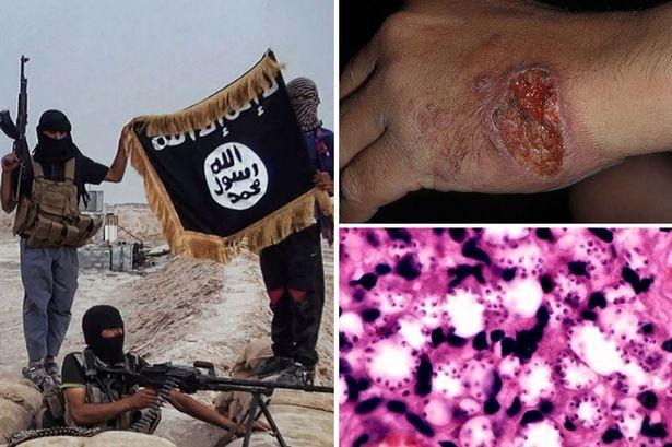 Virus 'ăn thịt người' tàn phá hàng ngũ quân IS - ảnh 2