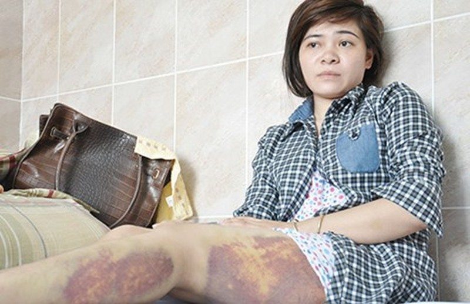 Công an Trảng Bàng xin lỗi nữ công nhân bị đánh nhập viện - ảnh 1