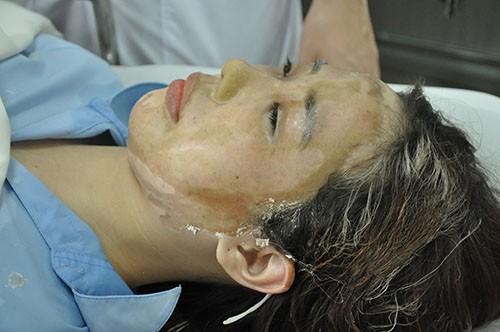 Khó giữ đôi mắt của nữ sinh viên bị tạt acid giữa phố Sài Gòn - ảnh 1