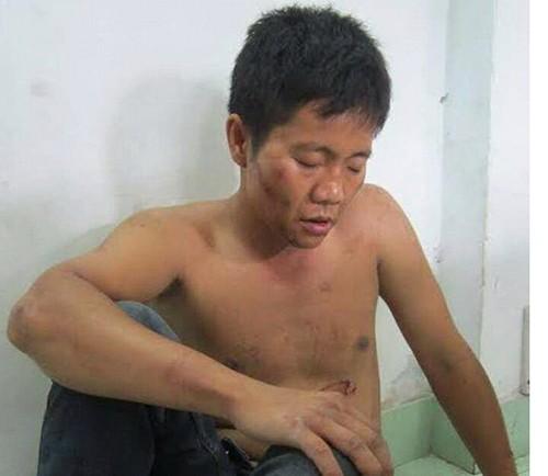 Hai tên trộm rút dao cướp xe khi bị cảnh sát truy đuổi - ảnh 1