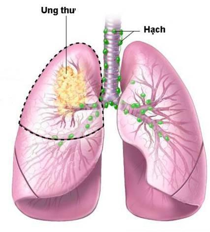 Ung thư phổi không phải là bản án tử! - ảnh 1